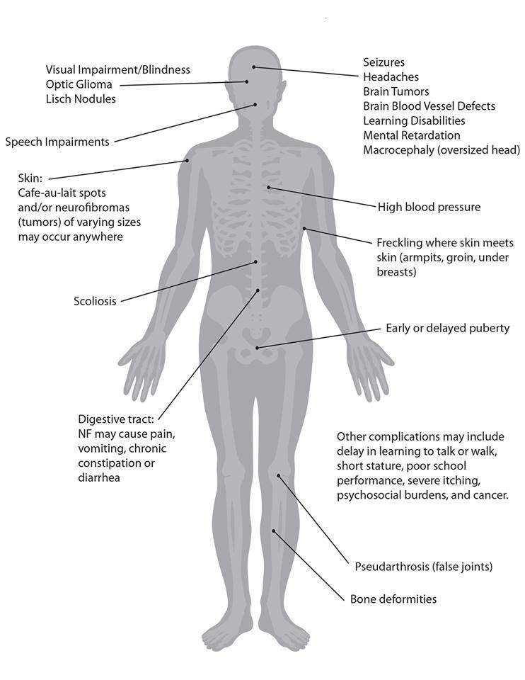 NF1 Bodysheet